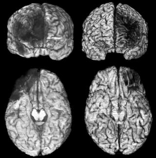 On the left is a patient who has damage to the brain's left ventromedial prefrontal cortex (vmPFC). On the right is a patient who has damage to the right vmPFC. Each patient has an anterior view (front brain view) on the top and a ventral view (bottom brain view) on the bottom. The areas of brain damage are shown as black areas in the images.  In both patients, the damage occurred during development (before the age of 18).
