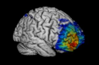 The image shows the overlap of lesions for eight subjects superimposed on a template brain -- red indicates maximum overlap (seven subjects) and dark blue is minimum overlap (one subject). The patient group was selected for lesions that include the frontopolar cortex, but the lesions almost invariably extended outside to other parts of the anterior prefrontal cortex.