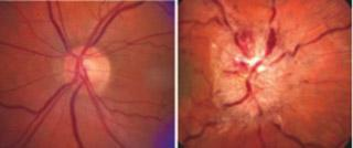 image of normal optic nerve and a swollen optic nerve