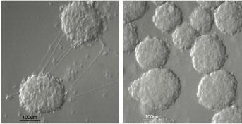 insulin-producing cells (right) and precursor cells (left).