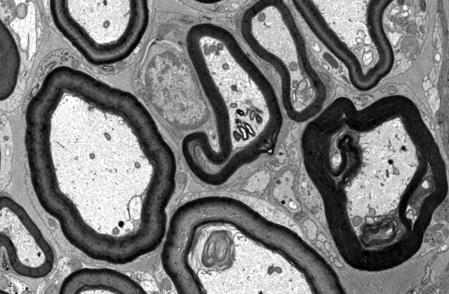 Image shows electron microscopy of myelin abnormalities caused by CF mutation