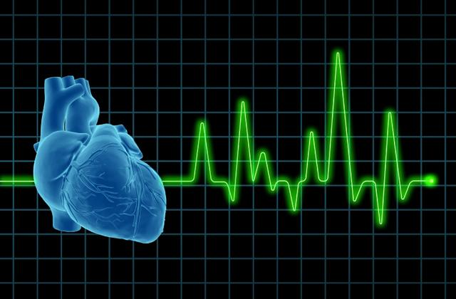 Image of a electrocardiogram (ECG / EKG), with human heart on screen.