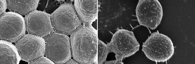 scanning electron microscope images of bacteria
