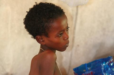 boy with visceral leishmaniasis