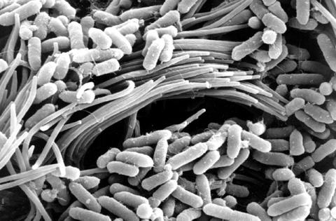 bacteria (Pseudomonas aeruginosa) on the surface of a CF-affect airway.