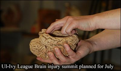 An image of a human brain being held in someone's hands.