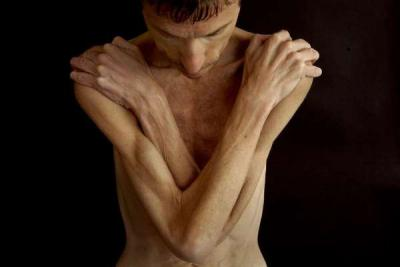 Photo of a male anorexic clutching his chest with his arms. Photo courtesy of the LA Times