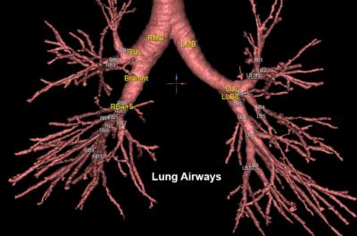 graphic of lung airways
