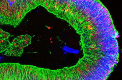 a developing retina generated from human induced pluripotent stem cells