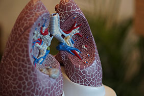 model of lungs